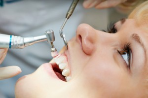Durchführung einer Zahnreinigung