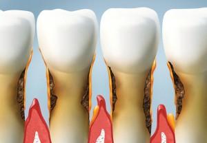 Grafik - Zähne mit Karies