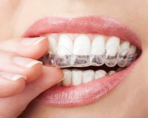 Home Bleaching in Zusammenarbeit mit dem Zahnarzt