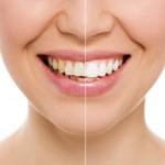 weisse Zähne durch Bleaching