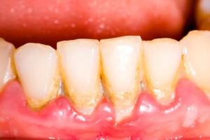 Von Gingivitis befallene Zähne