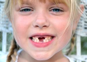 Zahnlücke beim Zahnwechsel