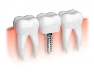 Wann sind Zahnimplantate möglich